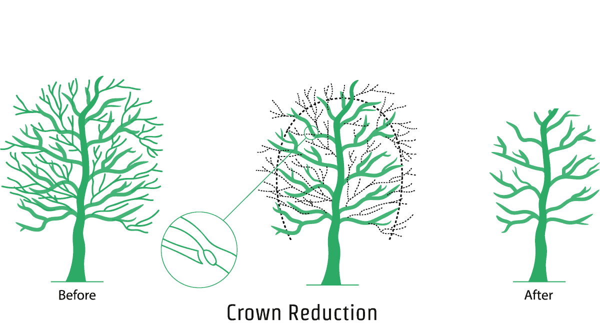 Crown Reduction - An illustration showing the crown reduction process
